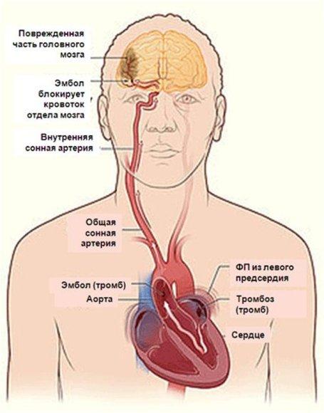 Тромбоэмболический инсульт