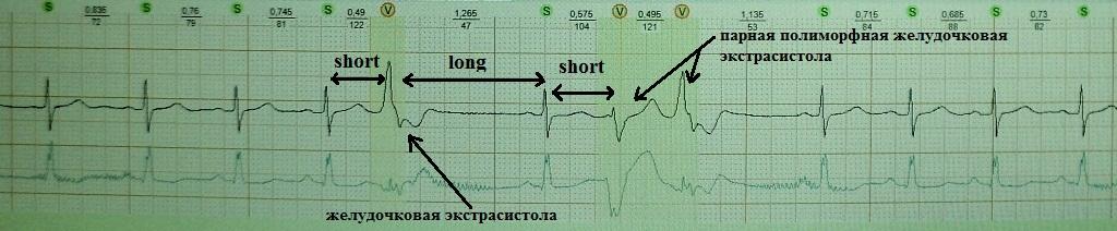 Феномен short-long-short