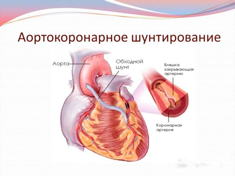 Стандарт медицинской помощи при облитерирующем атеросклерозе