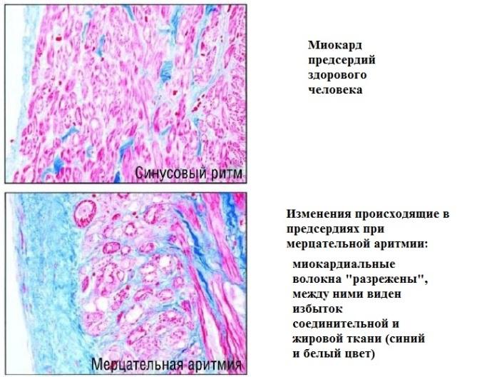 Миокард при фибриллции предсердий