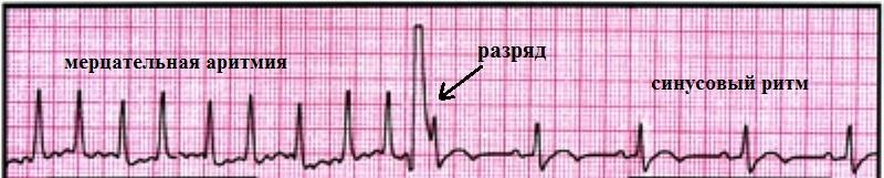 Кардиоверсия на ЭКГ
