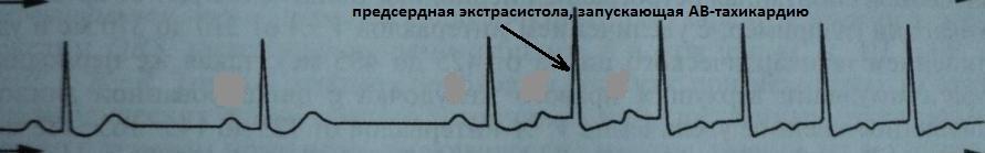 АВ-тахикардия