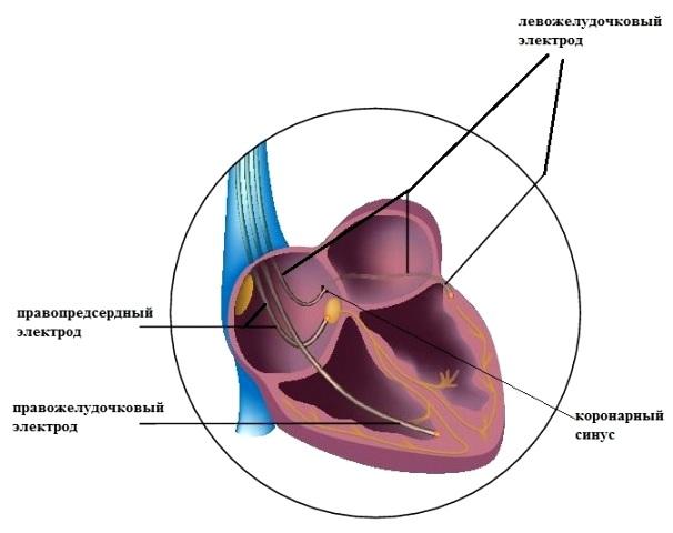 Локализация электродов при ресинхронизирующей терапии