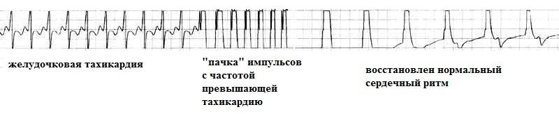 Восстановление ритма с помощью крдиовертера-дефибриллятора