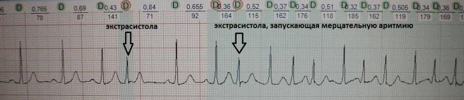 Запуск мерцательной аритмии