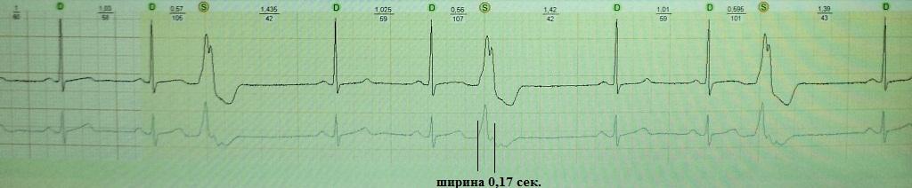Желудочковая экстрасистолия с широким QRS