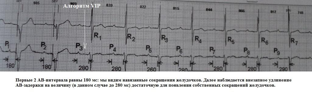 гистерезис AV-задержки