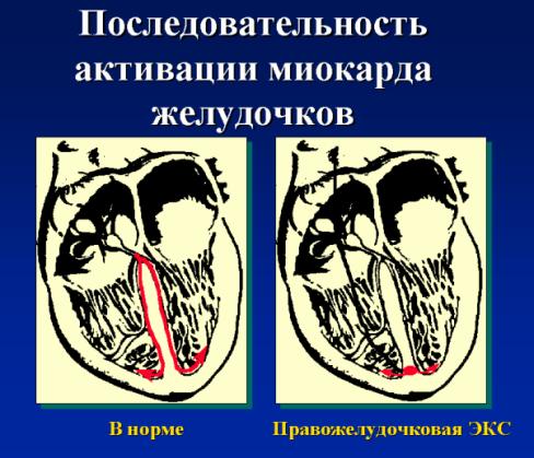 Активация желудочков в норме и при правожелудочковой стимуляции