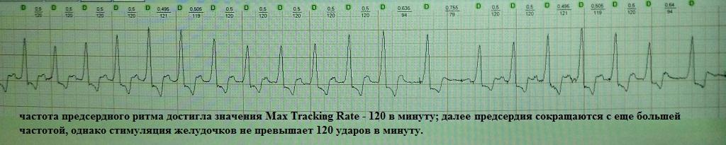 Превышение максимальной частоты стимуляции