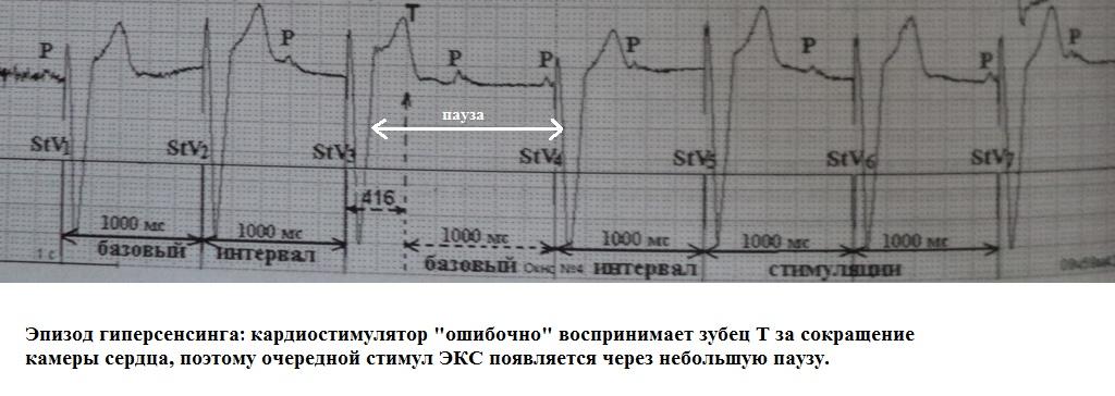 Гиперсенсинг кардиостимулятора