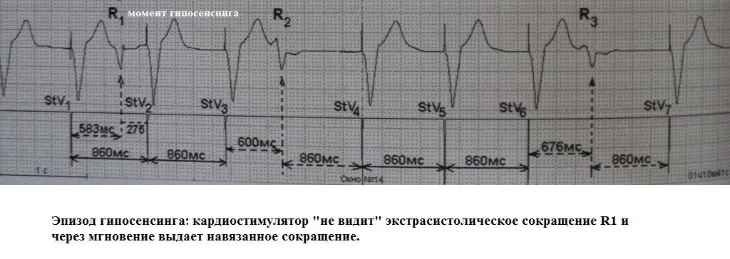 Гипосенсинг кардиостимулятора