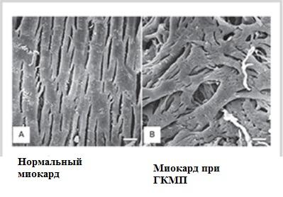 Нормальный и резко гипертрофированный миокард под микроскопом