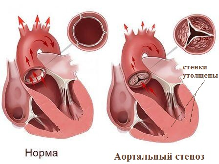 Здоровое сердце и сердце при аортальном стенозе