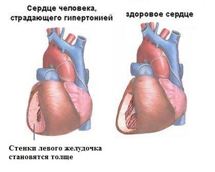 Здоровое сердце и сердце гипертоника
