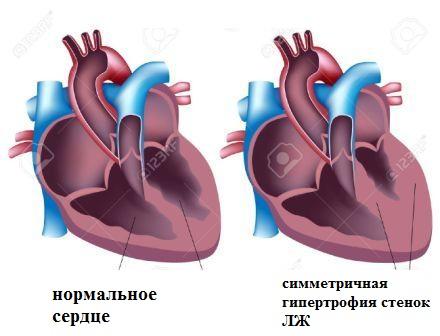 Нормальное сердце и сердце при симметричной гипертрофии левого желудочка