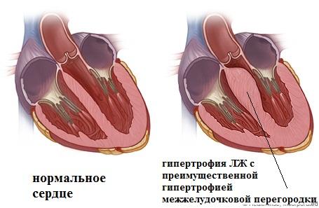 Нормальное сердце и сердце с гипертрофированной межжелудочковой перегородкой