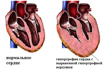 Нормальное сердце и сердце с гипертрофированной верхушкой левого желудочка