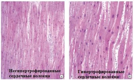 Нормальный и гипертрофированный миокард под микроскопом