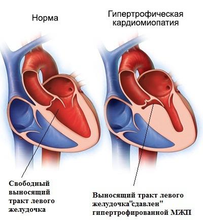 Обструкция выносящего тракта левого желудочка
