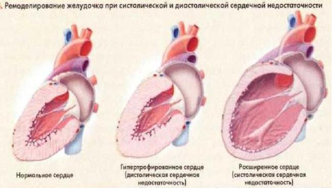 Ремоделирование левого желудочка при сердечной недостаточности