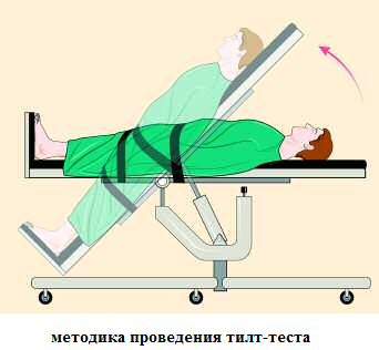 Методика тилт-теста