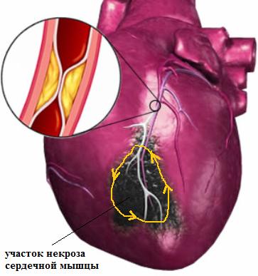 Постинфарктная желудочковая тахикардия