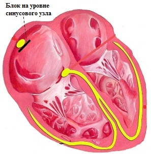 Блокада на уровне синусового узла