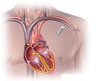 Имплантируемое подкожное устройство