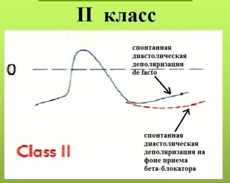 Схема действия антиаритмиков класса II