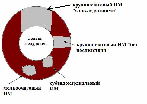 Разновидности инфаркта миокарда