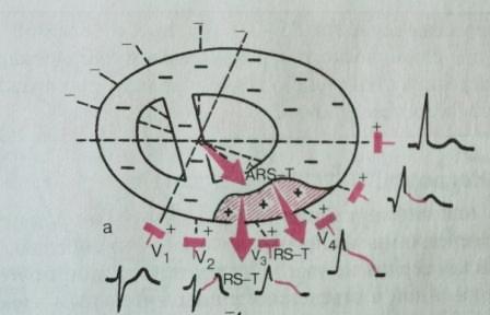 Изменение направления сердечного вектора при повреждении эпикарда