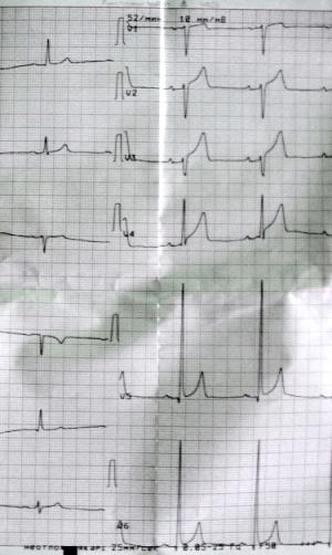 Подъем сегмента S-T при гипертрофии левого желудочка