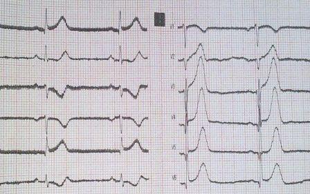 Косовосходящая элевация S-T при инфаркте миокарда