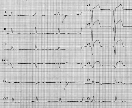 Платообразная элевация S-T при инфаркте миокарда