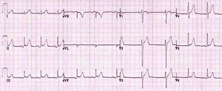 Платообразная элевация S-T при синдроме ранней реполяризации желудочков