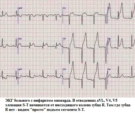 ЭКГ больного с острым инфакртом
