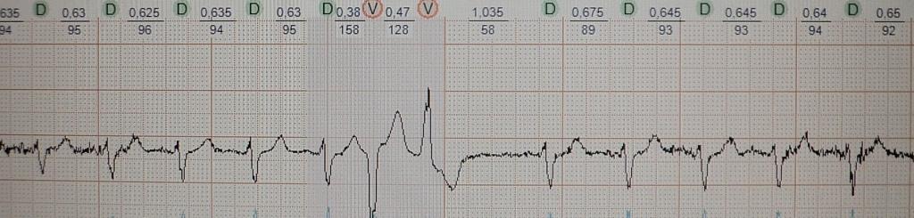 Постинфарктная желудочковая экстрасистолия