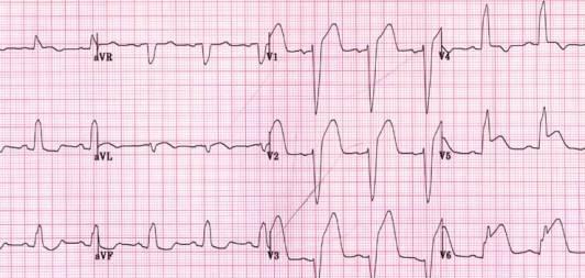 Инфаркт миокарда на фоне блокады ЛНПГ