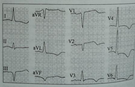 Подъем сегмента S-T при асимметричной гипертрофии МЖП