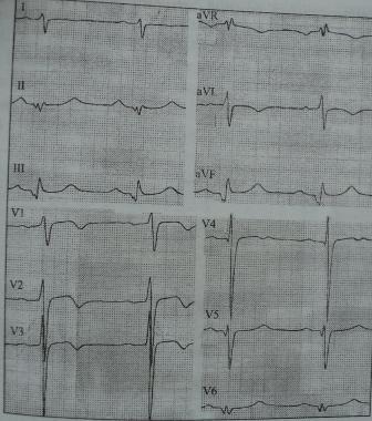 Инфарктоподобные изменения на ЭКГ при асимметричной гипертрофии МЖП