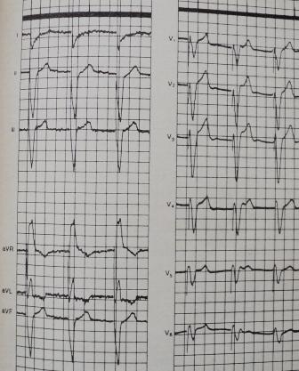 Подъем сегмента S-T при правожелудочковой стимуляции