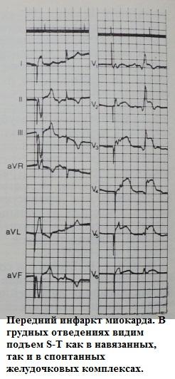 Элевация сегмента S-T при правожелудочковой стимуляции при инфаркте миокарда