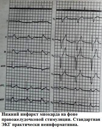 Инфаркт миокарда на фоне кардиостимулятора