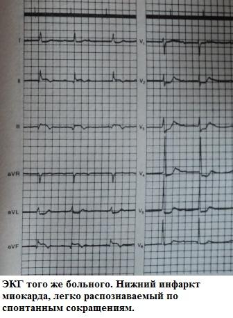 Инфаркт миокарда на фоне кардиостимуляции