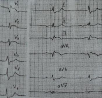 ЭКГ при остром легочном сердце