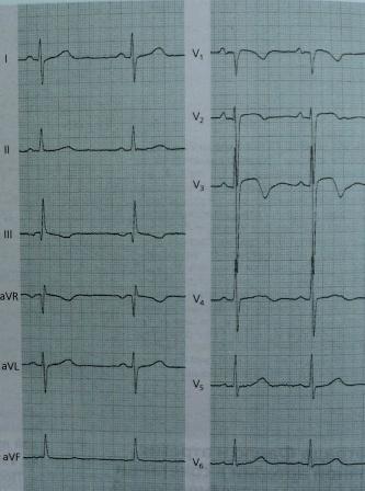 ЭКГ при гипертрофии правого желудочка