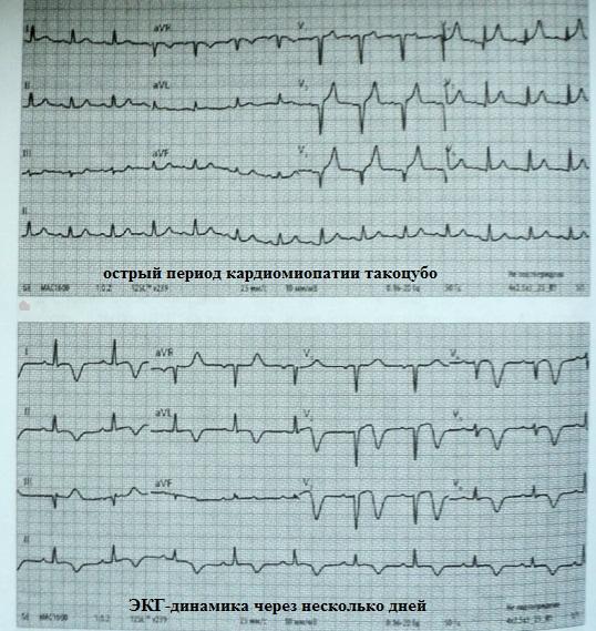 ЭКГ при кардиомипатии такоцубо