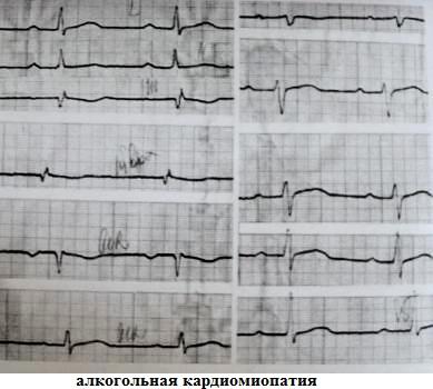 Инфарктоподобные изменения ЭКГ при алкогольном сердце