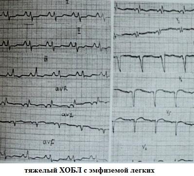 Инфарктоподобные изменения ЭКГ при тяжелом ХОБЛ