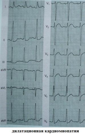 Инфарктоподобные изменения ЭКГ при дилатационной кардиомиопатии